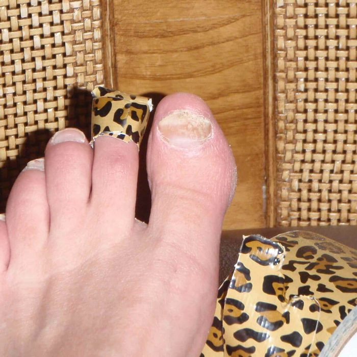 Fungus Toe Nail Remedy